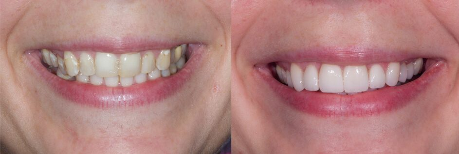 before and after veneers and a crown in our smile gallery in Stuart, FL