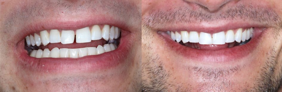 Before and after bonding on front teeth in our smile gallery in Stuart, FL