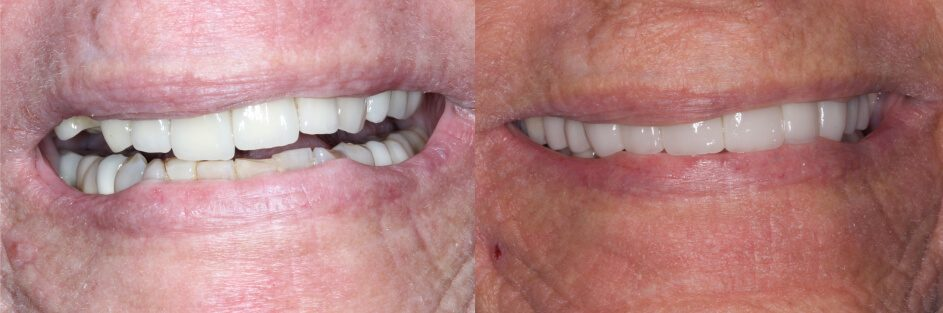 before and after broken tooth restoration in our smile gallery in Stuart, FL