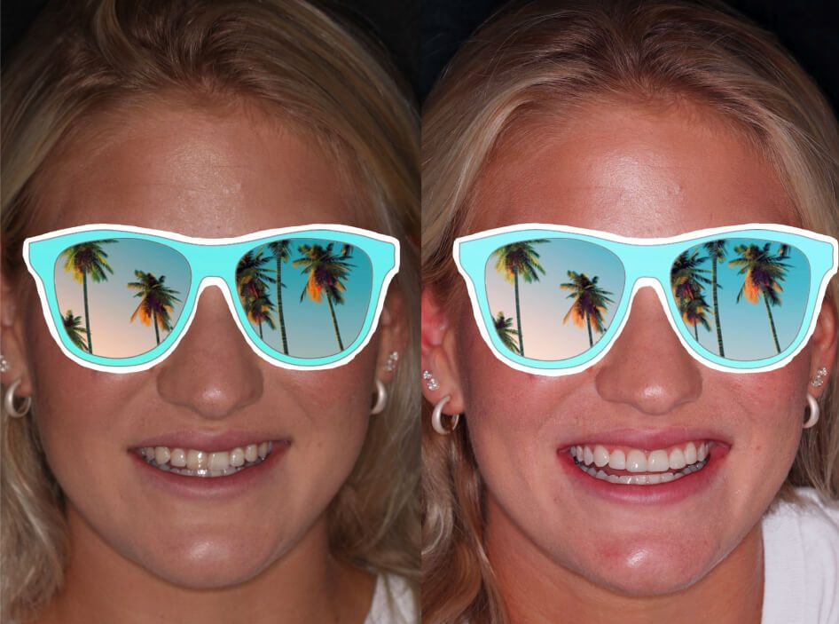 Before and after composite veneers in Stuart, FL