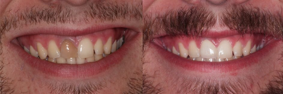 before and after ceramic crown with shade matching in Stuart, FL