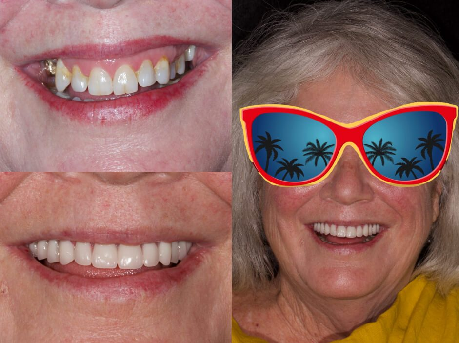 Dental implants and a permanent implant-supported denture in our smile gallery in Stuart, FL