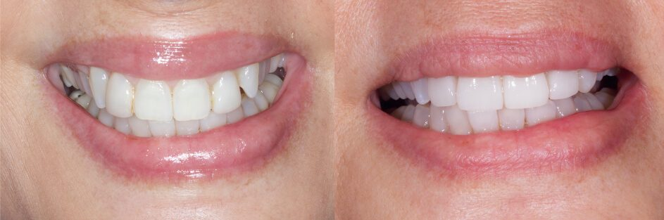 Before and after veneers on the front teeth in smile gallery in Stuart, FL