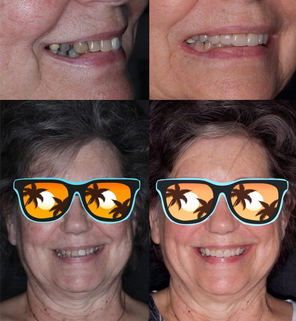 before and after crowns and veneers in our smile gallery Stuart, FL