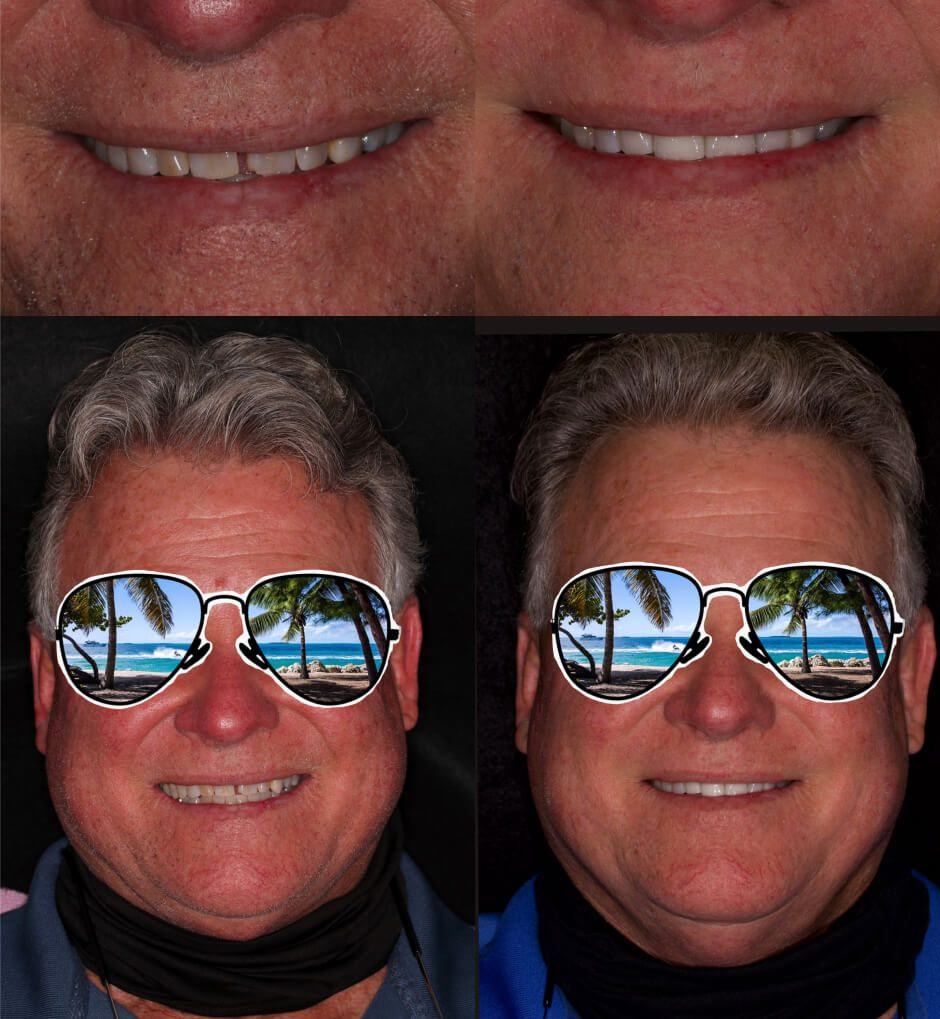 before and after veneers and crowns in our smile gallery in Stuart, FL