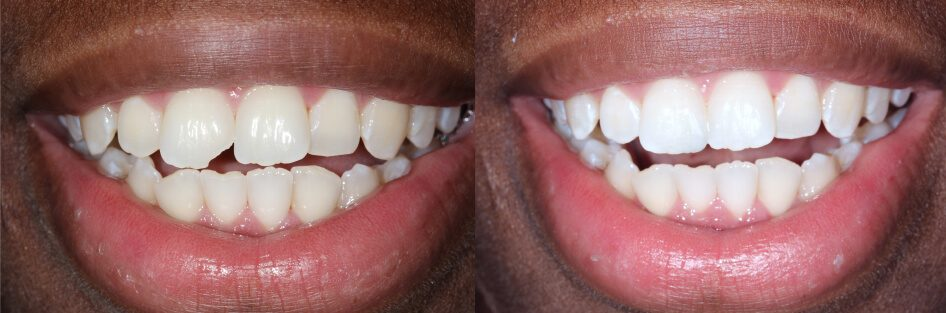 before and after color-matched tooth bonding in Stuart, FL