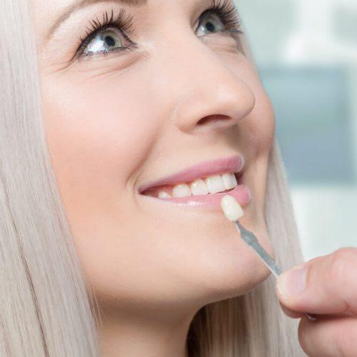 Color matching teeth for veneers in Stuart, FL
