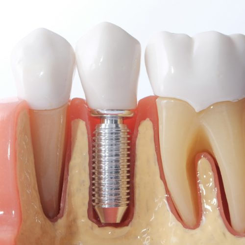 model of a dental implant placement